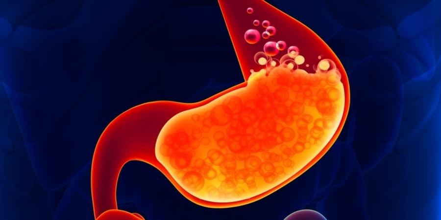 γαστροοισοφαγική παλινδρόμηση και διατροφή