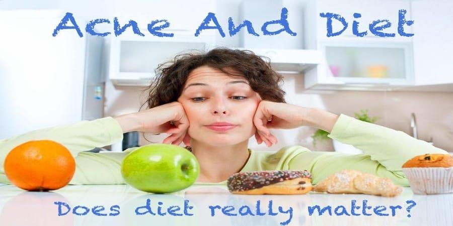 Ακμή και διατροφή
